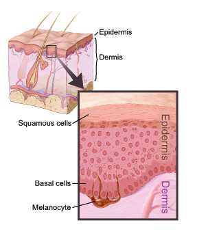 Epidermis Causes Symptoms Treatment Epidermis