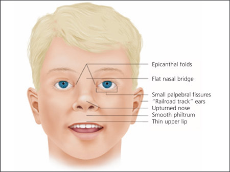 Fissure Palpebral Causes Symptoms Treatment Fissure
