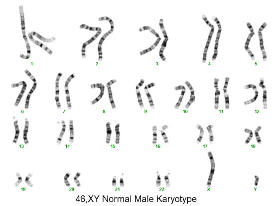 how to tell female from male chromosomes